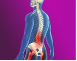 dolor-lumbar-cronico