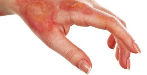 curar-una-quemadura-cuando-se-tiene-diabetes
